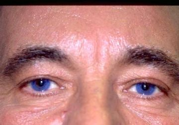 Male Eyelid Surgery (Blepheroplasty)
