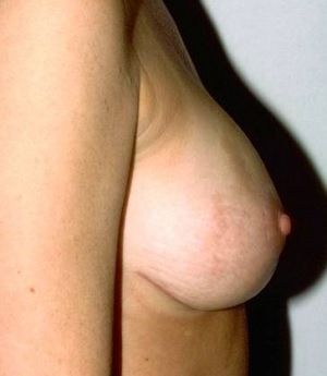 Gallery of Breast Lift / Mastopexy