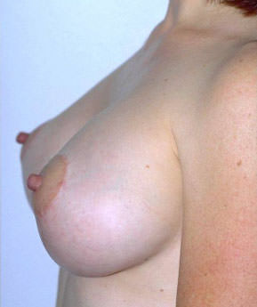 Breast Lift / Mastopexy