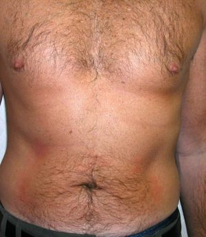 Male Liposuctions