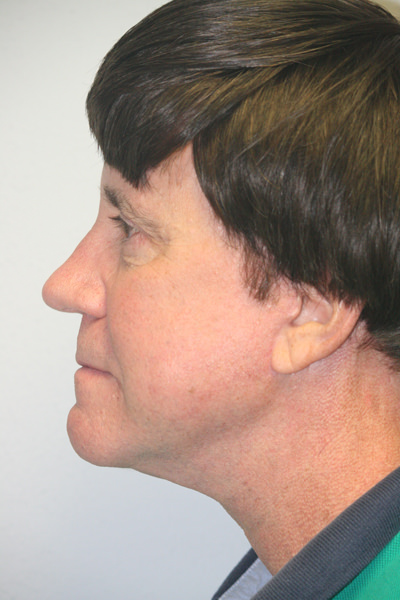 Male Forehead, Face and Neck Lifts
