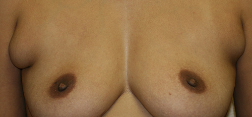 Liposuction of Axillary Rolls
