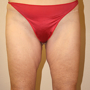 Buttock and ThighLift