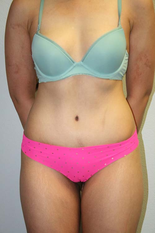 After picture of a tummy tuck procedure in the Dallas, TX area