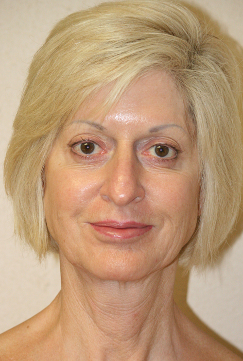 Forehead, Face and Neck Lift